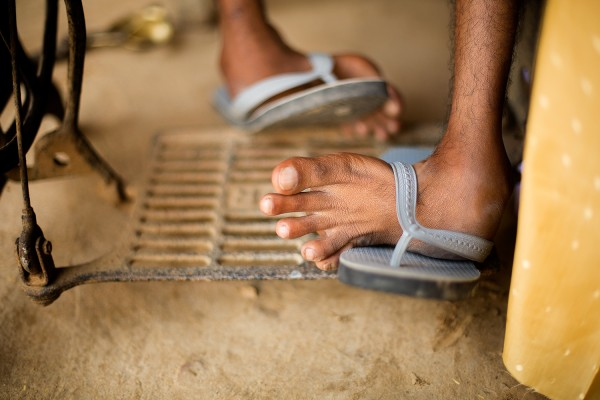 A man with untreated clubfoot in India
