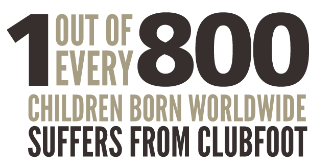 One out of every 800 children born worldwide suffers from clubfoot