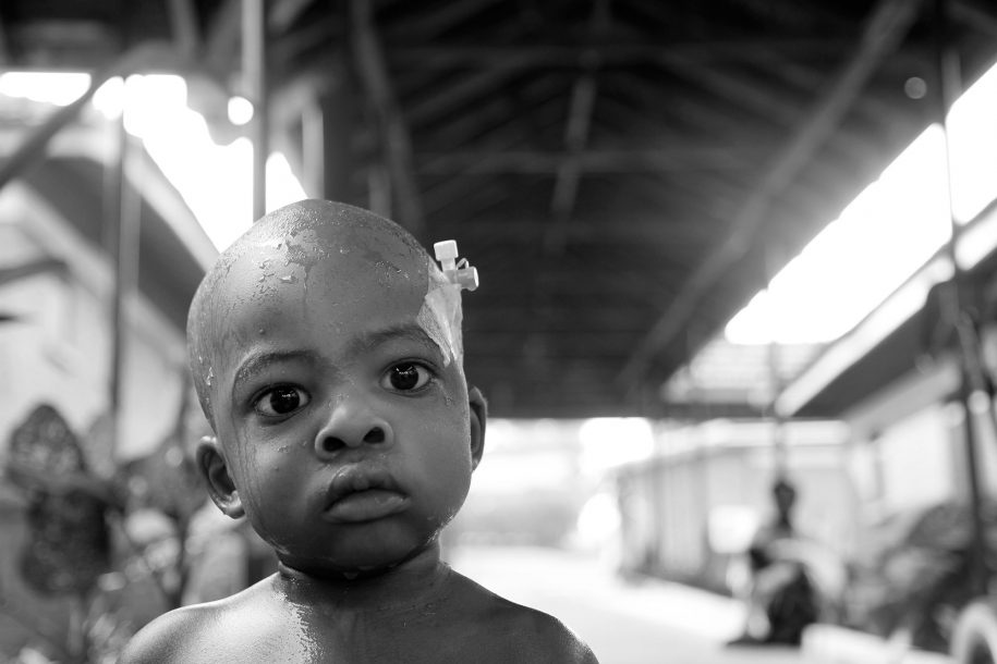 Water runs down Nelvin's head as he sits in a tub while his mother Shamim bathes him outside the ward.