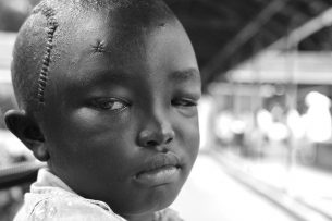 Ashim sits outside the ward a few hours before going home.