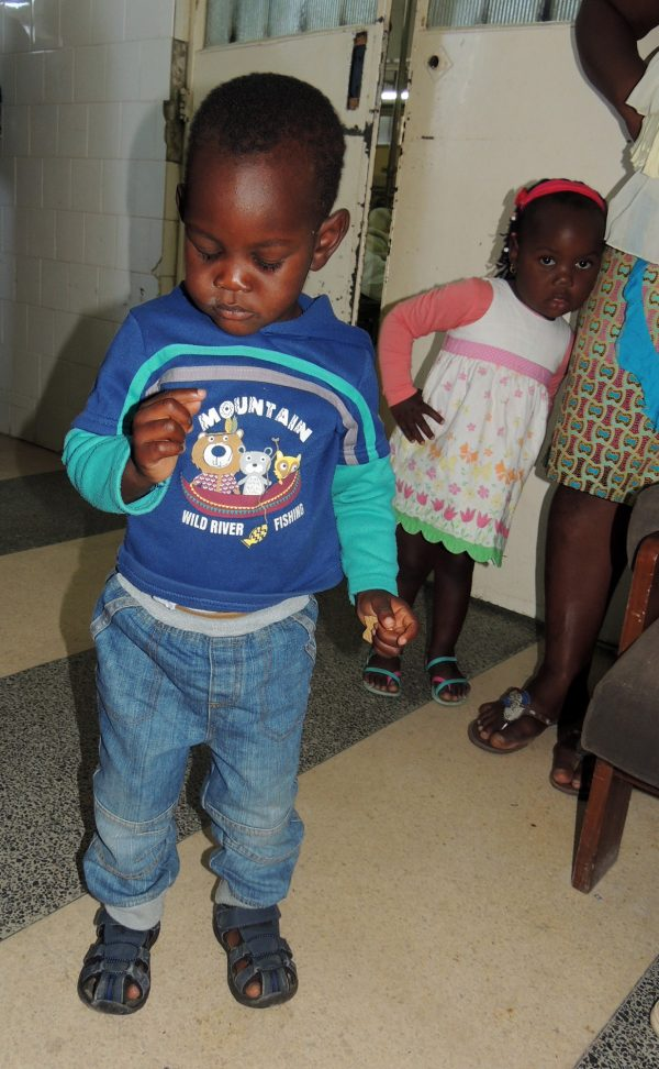 Clubfoot Clinic Mozambique