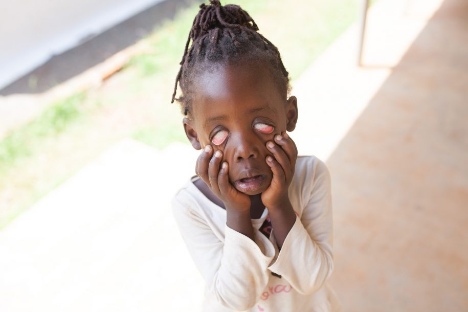 We met this girl at a mobile clinic, but her name is slipping our mind. That doesn't make her adorable silliness any less real though!