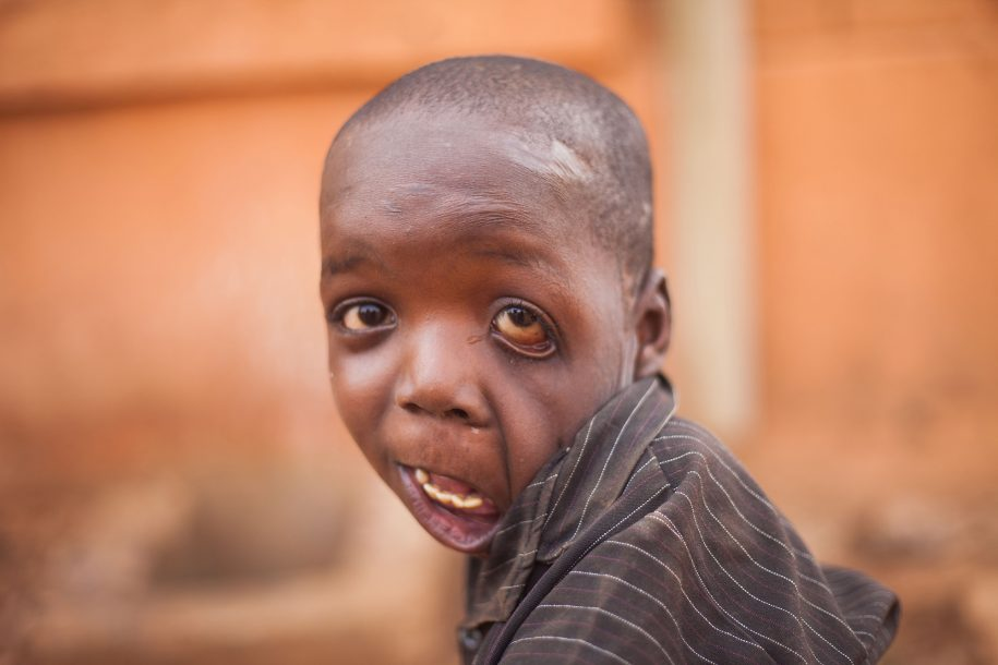 Nafiou got badly burned when his shirt caught on fire, but the resulting contractures, although severe, haven't dampened this guy's personality or love for life!