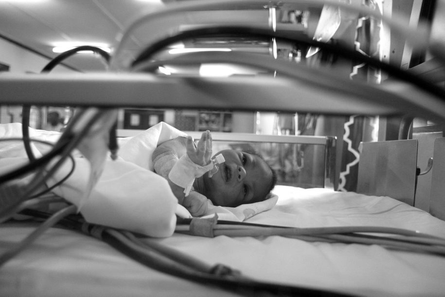 Junior lays in his bed in the ICU.