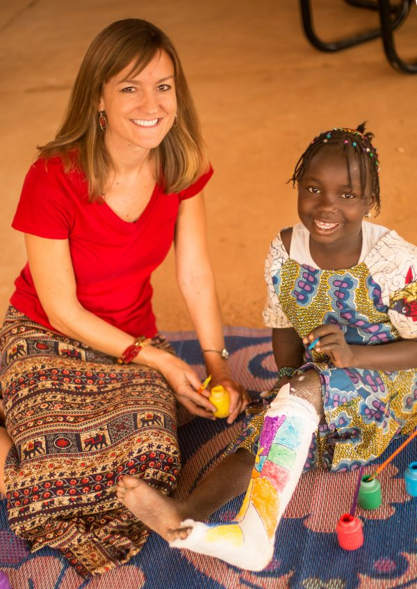 Painting casts at CURE Niger.