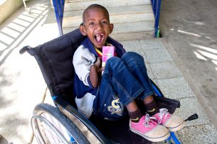 This is Yohannes at his followup appointment showing off those missing teeth.