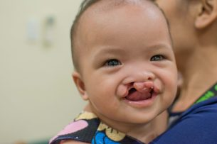 We love seeing huge smiles from CUREkids ready to get their cleft lip surgeries. Xein Mel, who is just seven months old, is about to get her cleft lip fixed!