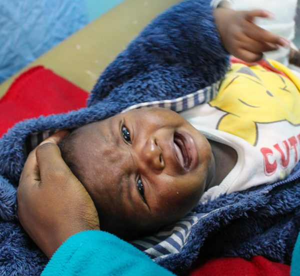 Jaden cries during his first clubfoot treatment.