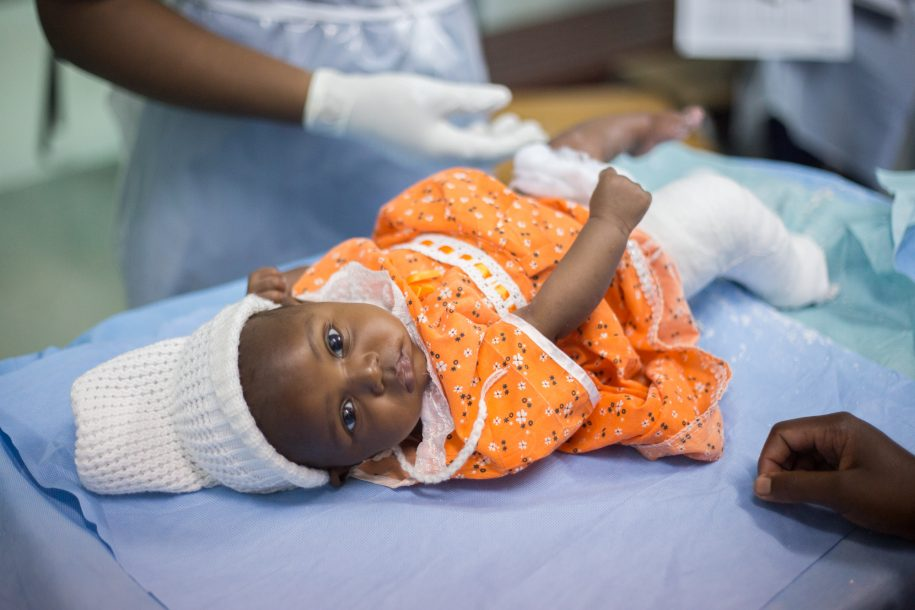 Diyana is such a calm baby, even while getting casts put on!