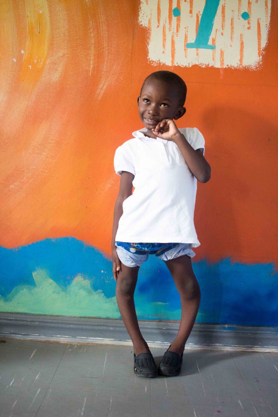 A photo of Justine from Zambia. Learn more at https://cure.org/curekids/zambia/2016/06/justine/