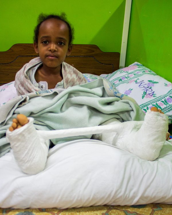 After photo of Meseret