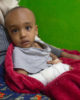 Photo of Reyan after treatment