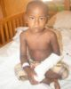 Photo of Ismael after treatment