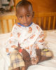 Photo of Ismael before treatment